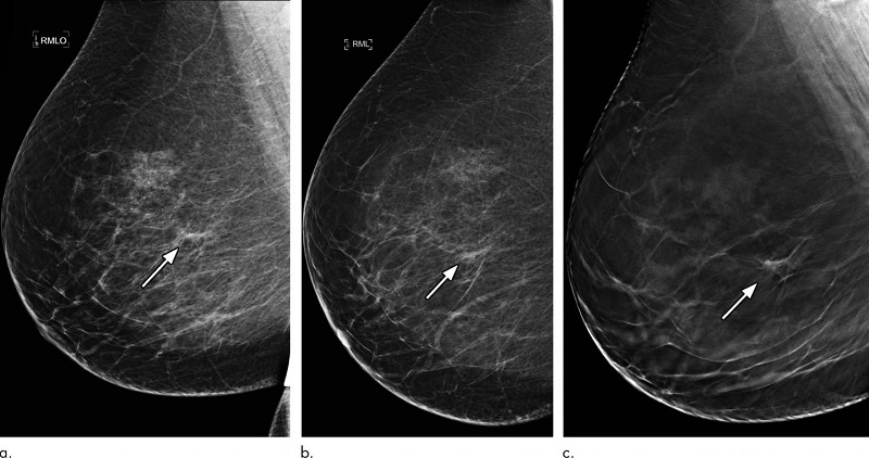 ماموگرافی 3 بعدی