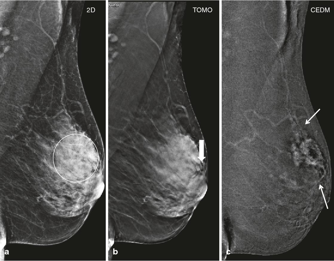 ماموگرافی دیجیتال