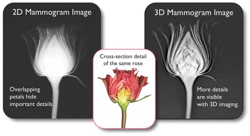 ماموگرافی 3 بعدی چیست