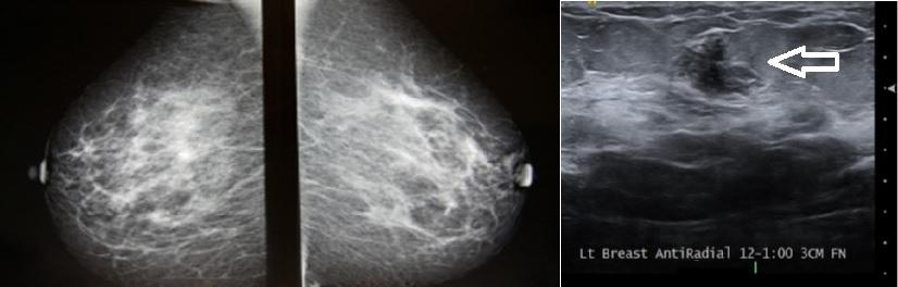 انواع سونوگرافی پستان