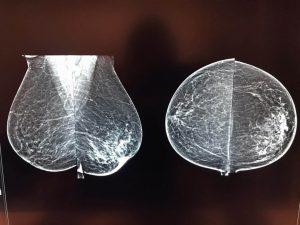 تصاویر ماموگرافی دیجیتال با دستگاه هالوژیک